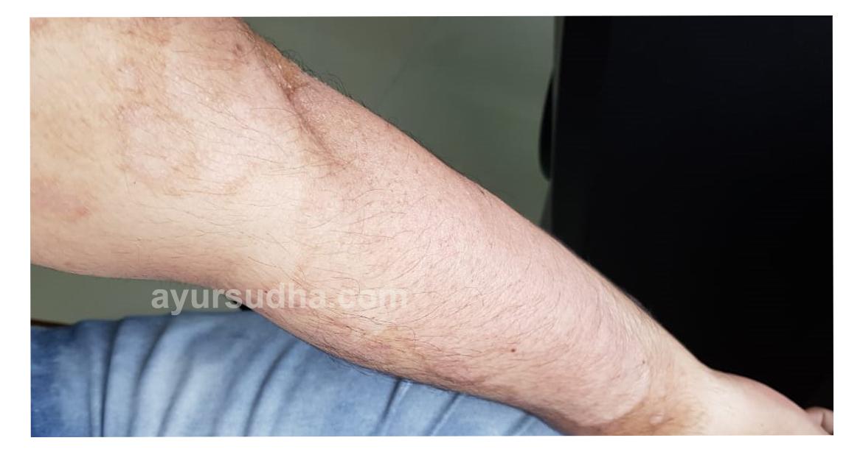 After-Psoriasis Ayurvedic Treatment